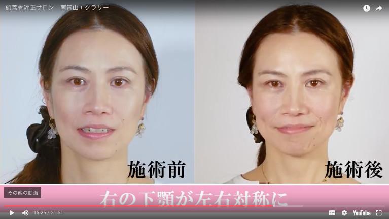 施術前施術後 右の下顎が左右対称に